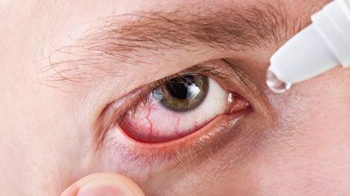Можно ли промывать глаза физраствором при конъюнктивите?